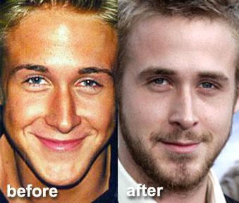 Celebrities Amp Cosmetic Surgery Celebrities Skinny