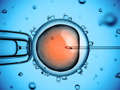 Artificial Insemination - Process, Success Rate and Side effects