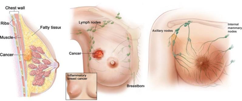 Testimoni Magozai Kanker Payudara