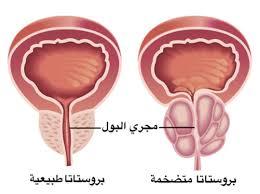 الكشف المبكر على اعراض سرطان البروستات قبل فوات الاوان
