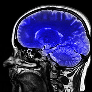 Head MRI image