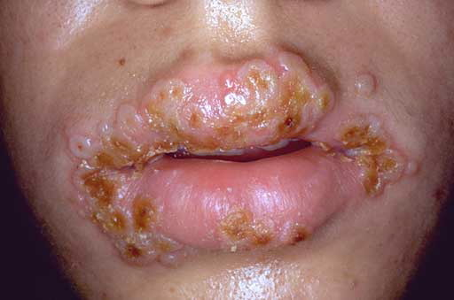 herpes and relationship