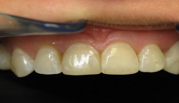 كيف تتخلص من طبقة الجير التى ترهق الأسنان و اللثة ؟