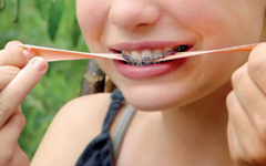 Ce sont les aliments à éviter si vous mettez des bagues dentaires