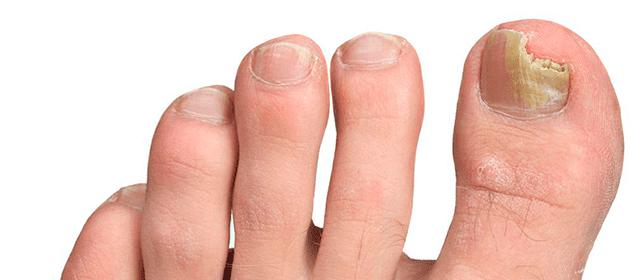 remedios para los hongos de las uñas