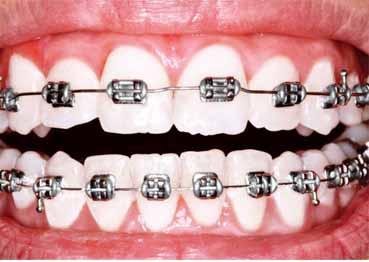 الأضرار المحتملة لتقويم الأسنان
