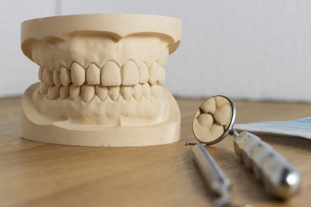طبعة الاسنان ومثال للدراسة