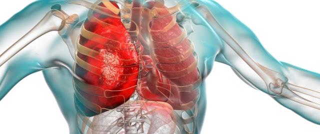 علاج الالتهاب الرئوي الحاد واعراضه واسبابه وأكثر أشخاص معرضون للإصابة