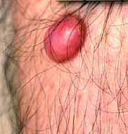 Obat Penghilang Dermatofibroma (Tumor Kulit Jinak)