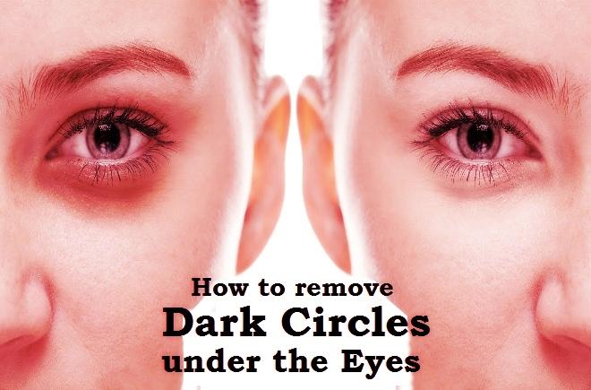 Dark circles under the eyes