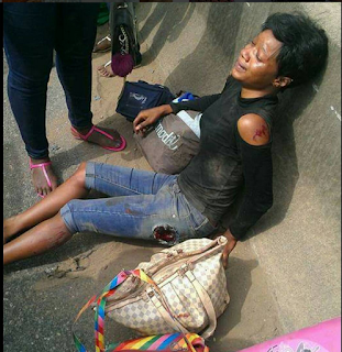 OMG!! Unidentified student involved in ghasty motor accident on her way back to school (PHOTOS)