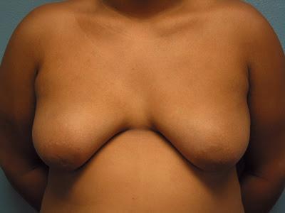 Gynecomastia Patient Pics
