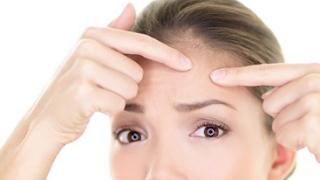 6 Hal Kebiasaan Buruk Penyebab Munculnya Jerawat di Wajah