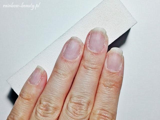 Zmatowienie płytki paznokcia