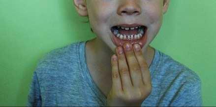 متى يبدأ تبديل الأسنان عند الأطفال؟
