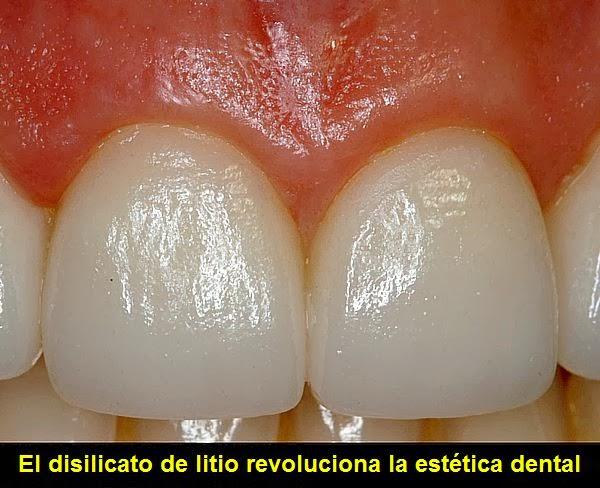 DISILICATO DE LITIO: Conozca sus ventajas para la estética dental
