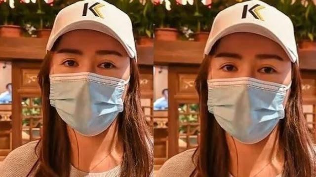 Operasi Plastik Demi Hidung Mancung, Wanita Ini Syok Saat Lihat Cermin, Bagian Telinganya Raib