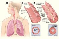 Cum recunoastem exacerbarea astmatica?