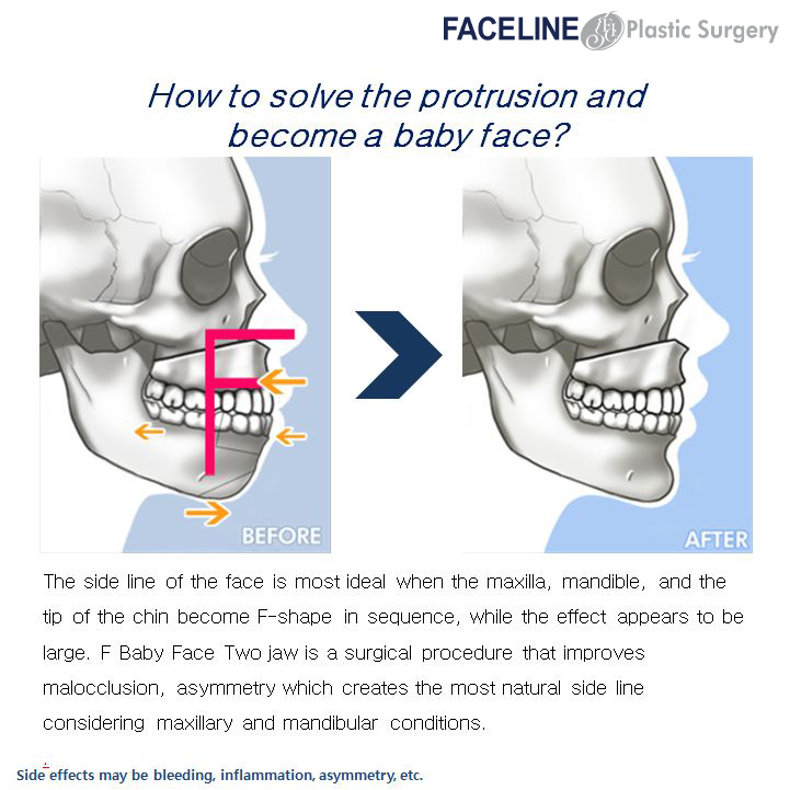 Cause and effect essay plastic surgery