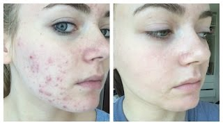 47 TIPS How to eliminate Acne with Traditional ingredient Without Side Effects - Healthy T1ps
