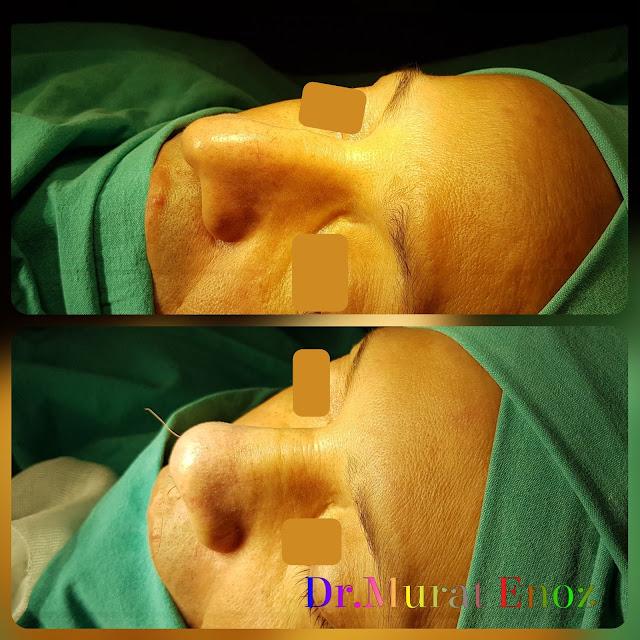 sarkık burun ucu estetiği,açık teknik burun ucu estetiği,Düşük burun ucu ameliyatı,Erkeklerde tip plasti operasyonu,