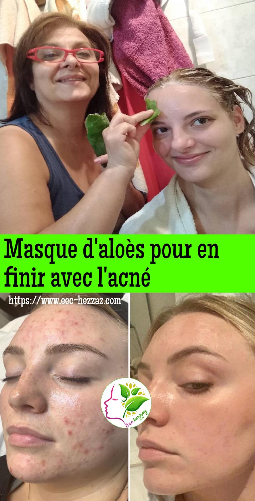 Masque d'aloès pour en finir avec l'acné