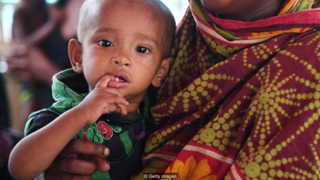 PBB Perkirakan COVID-19 Picu Kekurangan Gizi Parah pada Anak-Anak