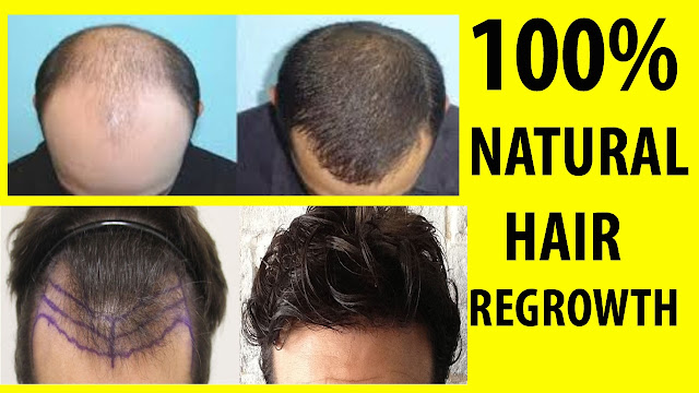 Are you eagerly waiting to know the tips to regrow your hair naturally?