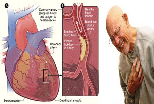 Cara Sederhana Mendeteksi Serangan Jantung dan Stroke