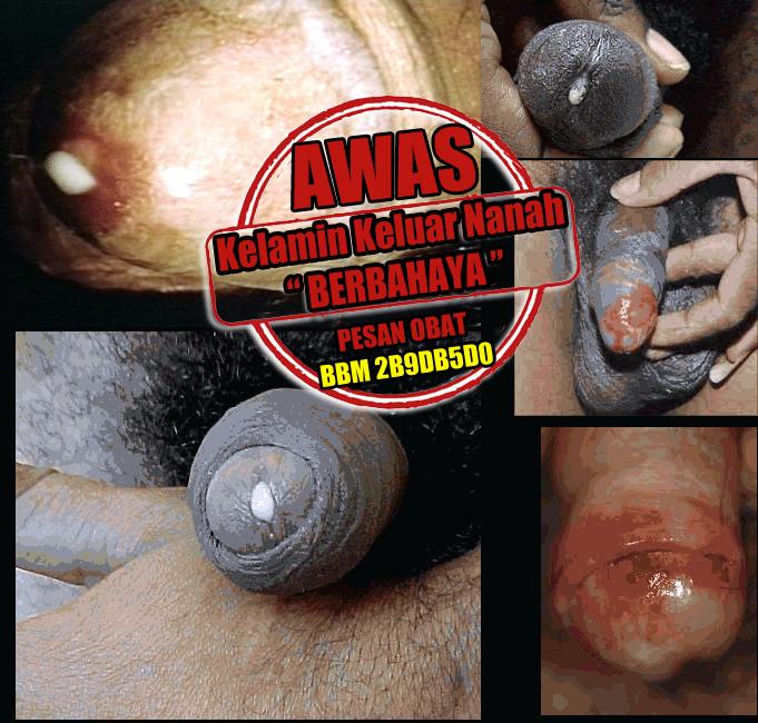 Pencegahan Gonorrhea (Kencing Nanah)