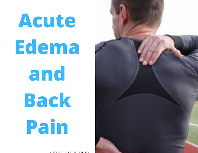 Acute Edema and Back Pain