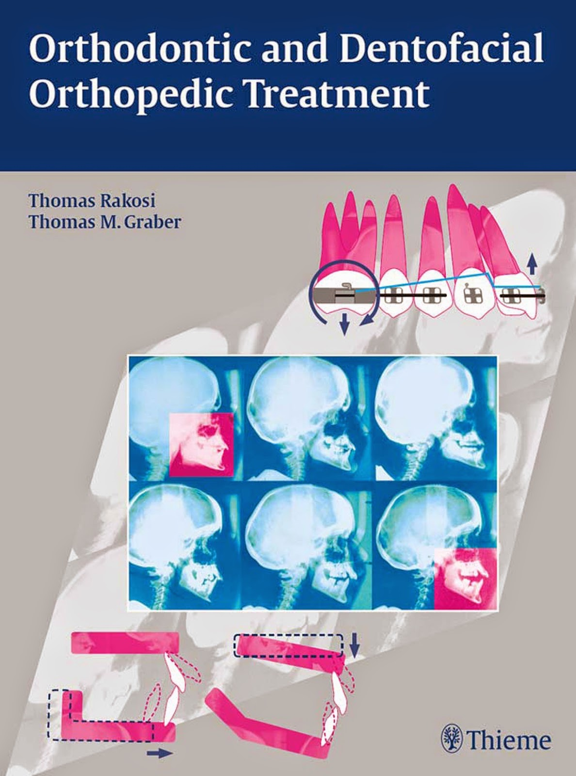 Orthodontic and Dentofacial Orthopedic Treatment - Thomas Rakosi,Thomas M. Graber- © 2010.PDF
