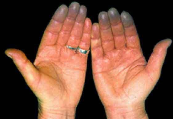 Онемение пальцев при диабете что это такое