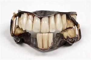 древний зубной протез