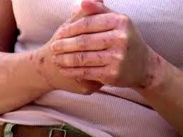 علاج غذائي للأكزيما وحكة وجفاف الجلد : علاج الاكزيما في اليد