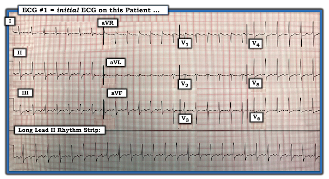 What Is Svt >> Dr Smith S Ecg Blog What Is This Regular Svt
