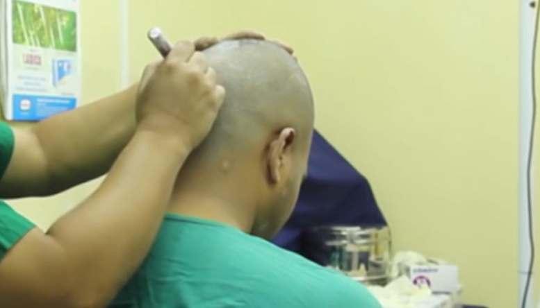 هل يمكن علاج فقدان الشعر لكافة الحالات؟