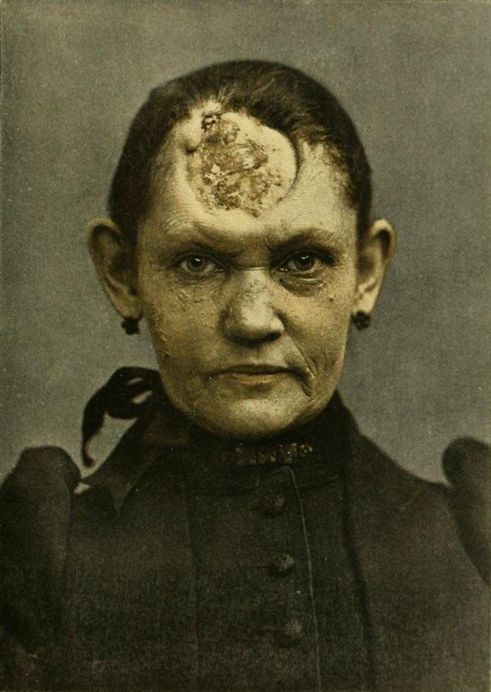 sífilis, fotos antigas, bizarro, doença venérea, dst
