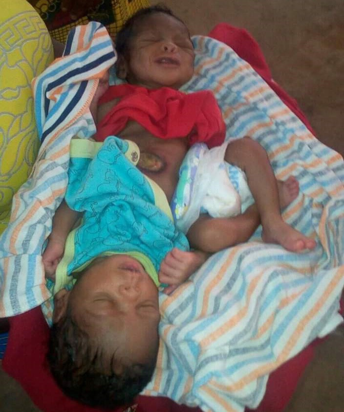 Shocking As Woman Gives Birth To Conjoined Twins In Benue - Photos
