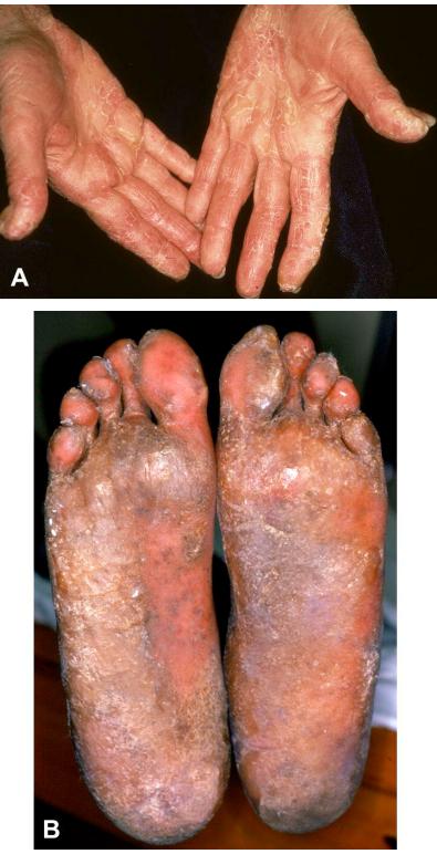 副肿瘤性肢端角化症(Acrokeratosis paraneoplastica,Bazex 综合征)的掌跖角化