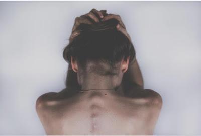 dolor de cabeza por cervicalgias