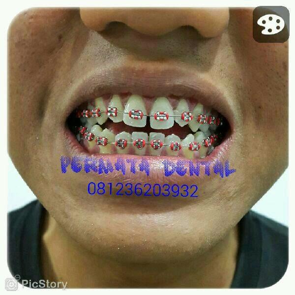 gambar foto behel bracket kawat gigi macam warna karet behel