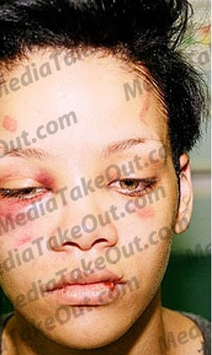 Beat Face Makeup Tutorial: N28: New Pics Of Rihanna Injured From The Chris Brown