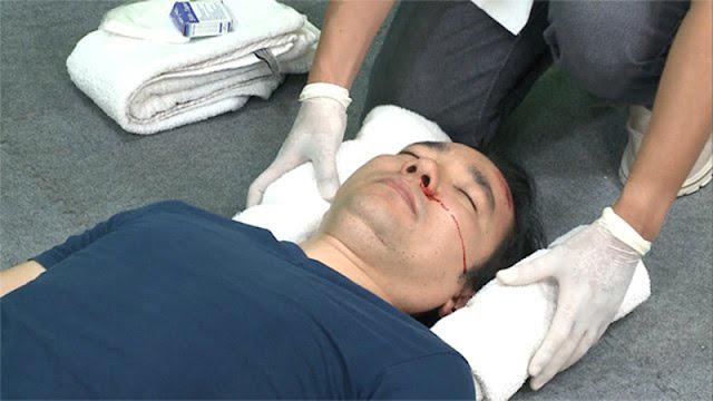 Hãy lập tức sơ cứu khi nạn nhân bị bất động sau cú ngã đập đầu
