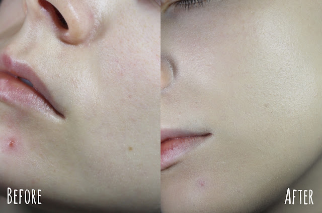 acne coverage skin before after how to cover acne pimples scars blemishes blogger