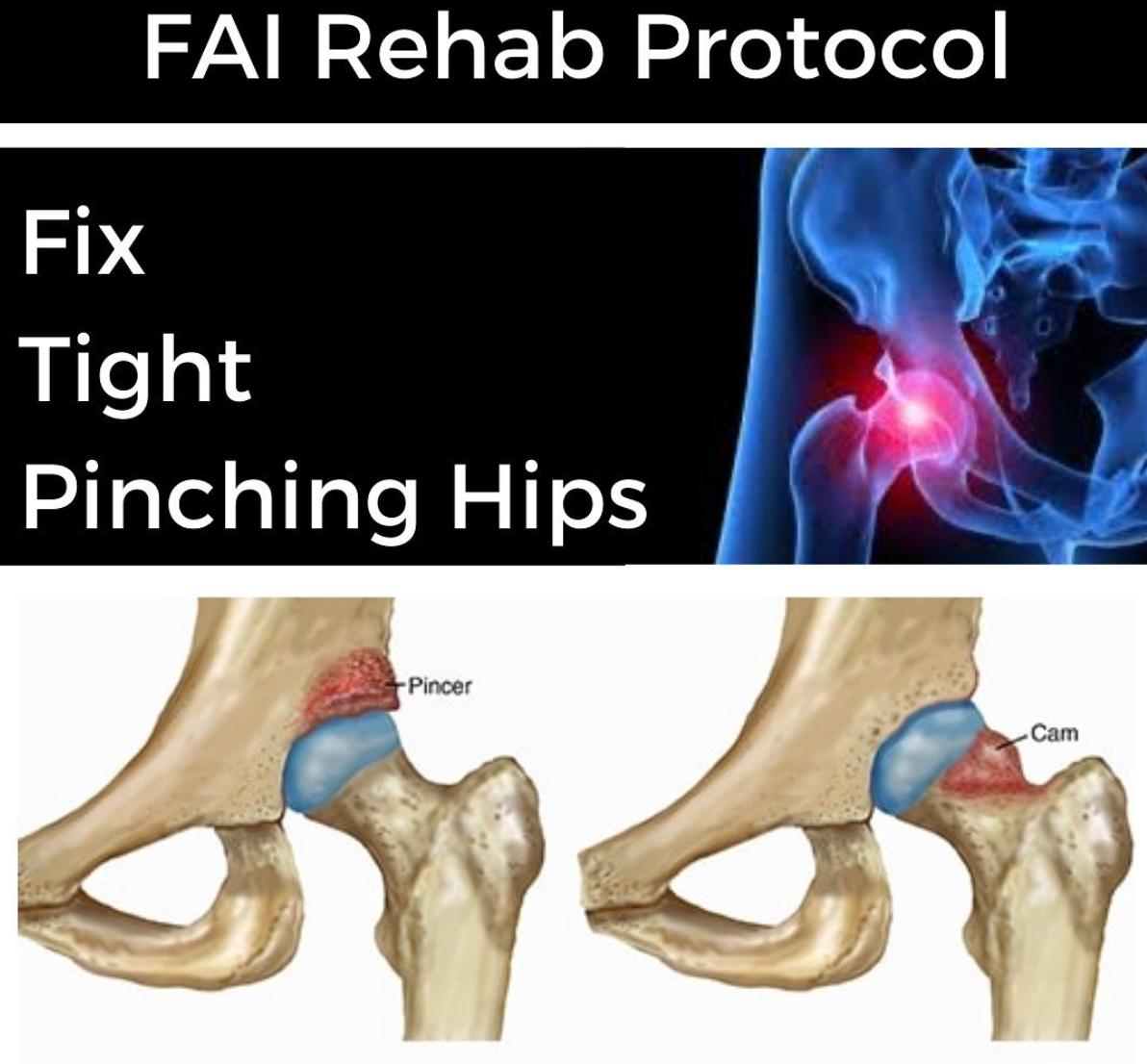 FAI Rehab Protocol Part 1 - themanualtherapist.com