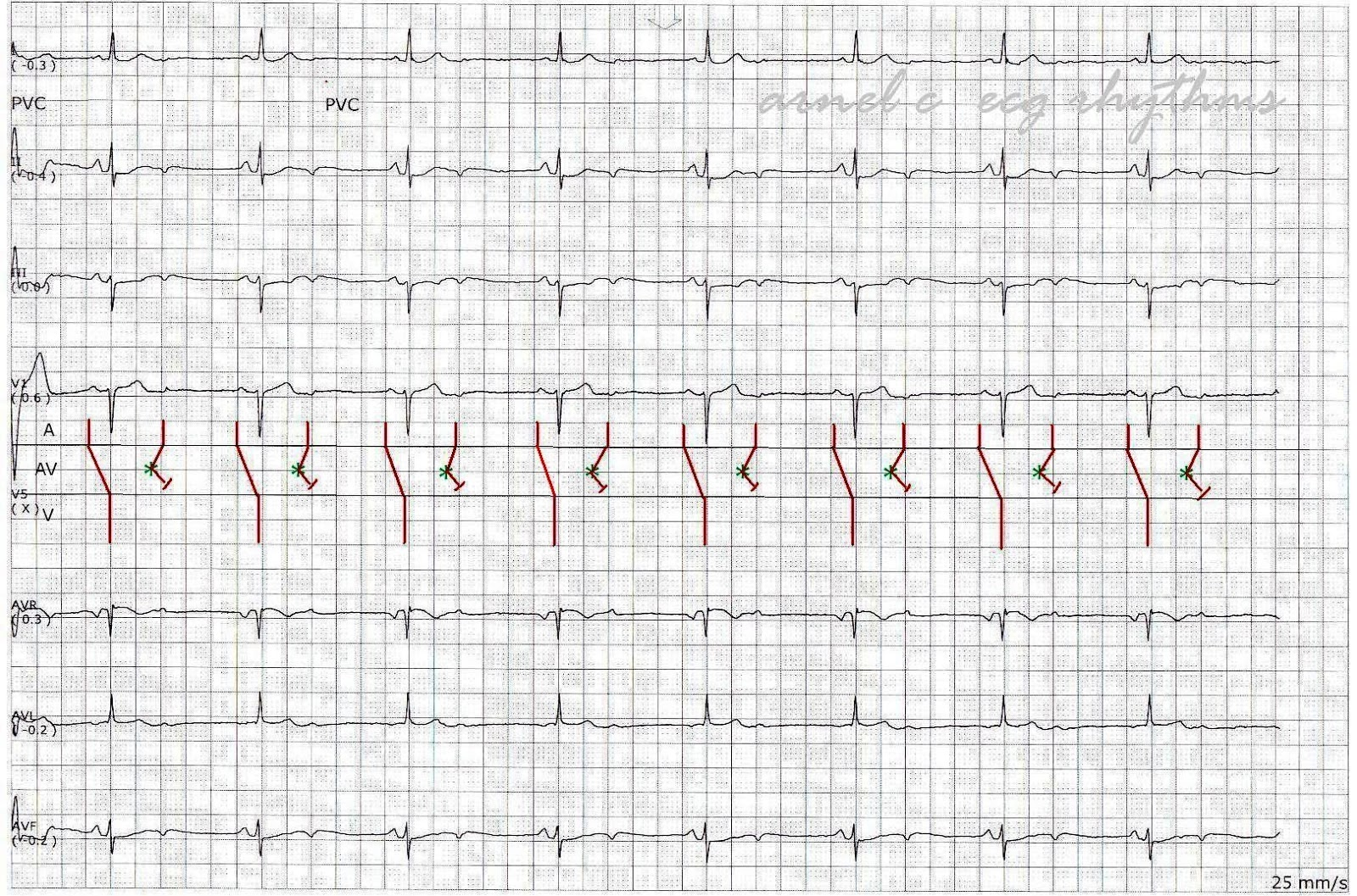 Ecg Rhythms A Rare Cause Of Bradycardia Non Conducted