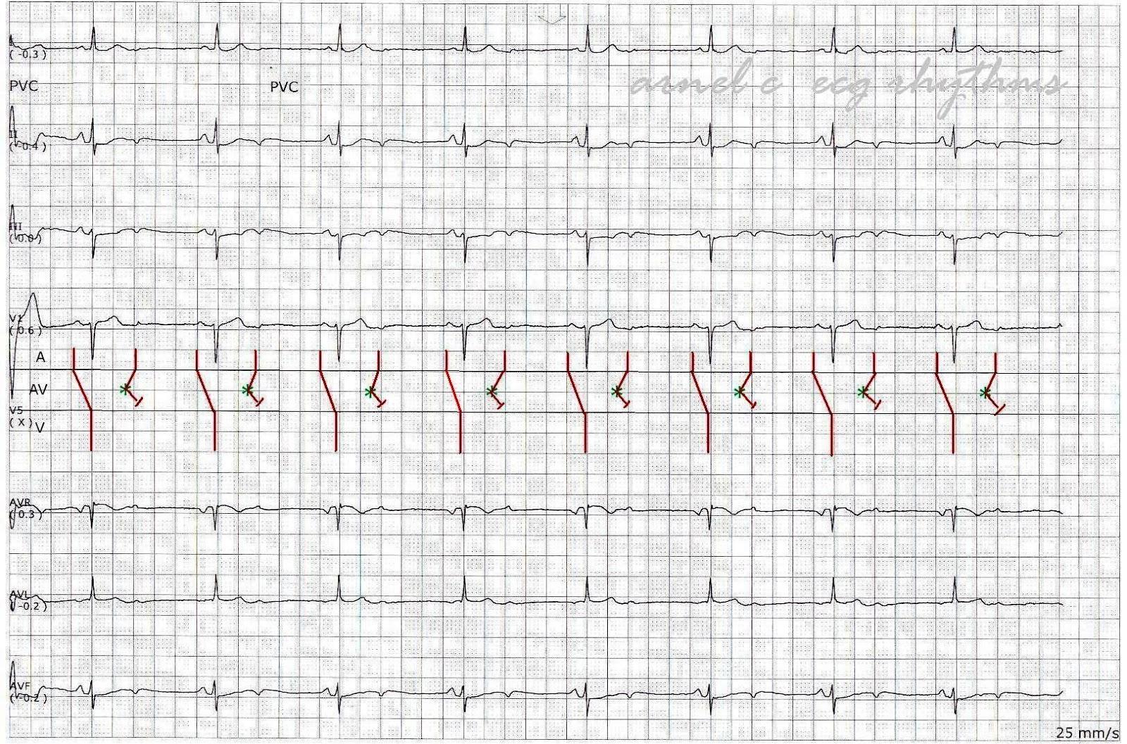 ecg rhythms  a rare cause of bradycardia  non