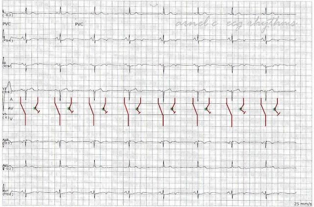 ECG Rhythms: A rare cause of bradycardia: non-conducted