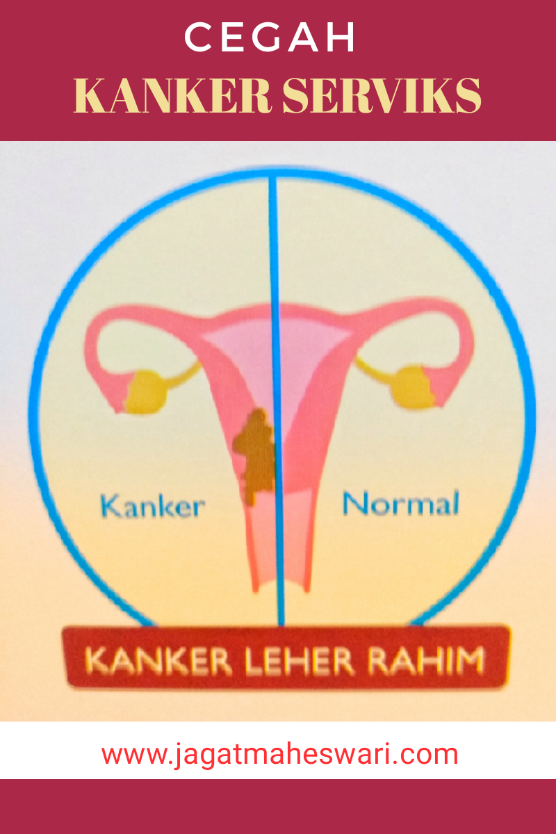 Cara Mencegah Kanker Serviks Kanker Leher Rahim